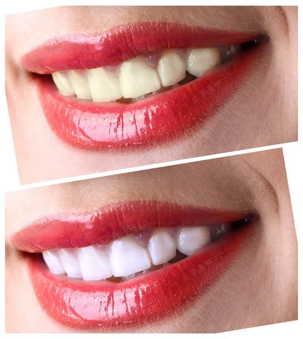 Women smile with teeth: whitening - bleaching treatment ,