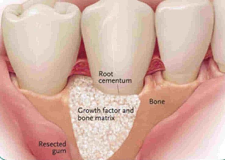 Bone_graft