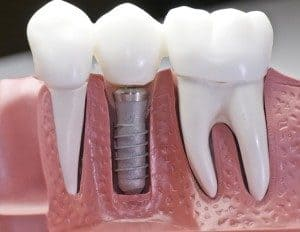 dental-implants-300x232